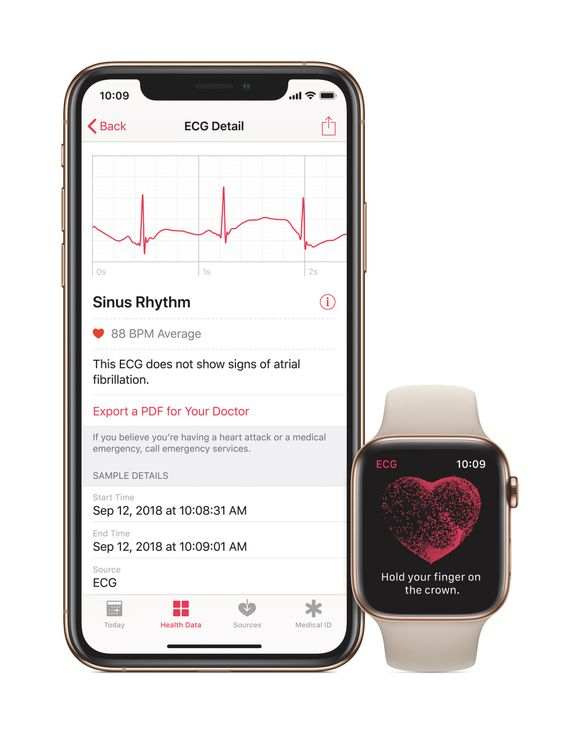 Apple Watch 4_ECG App_AvantGuard